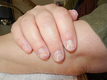 tånagel lossnar från nagelbädden