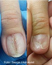 sjuka naglar
