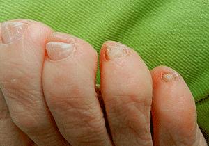 hur ska man klippa tånaglarna
