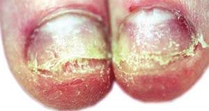 Bakterier under naglar