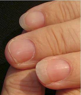 psoriasis naglar bilder