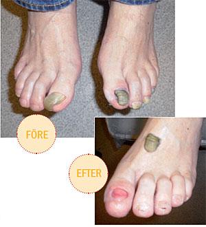 tjocka naglar sjukdom