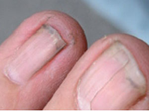 blödning under nagel