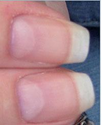 naglar sjukdomar tecken