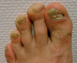 svamp i nagel